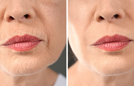 Face Lifting Cihazı